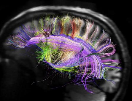 Cerveau irmd 1