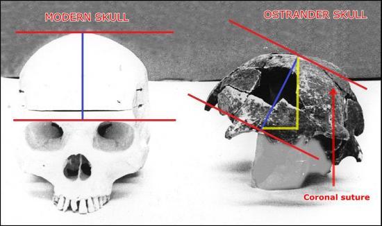 ostrander-skull.jpg