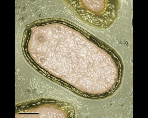 pandoravirussalinus.jpg
