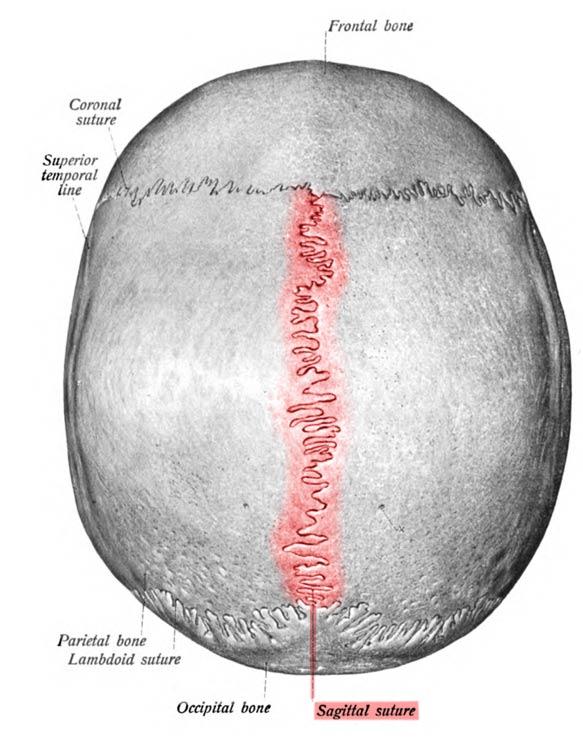 Sagittal suture