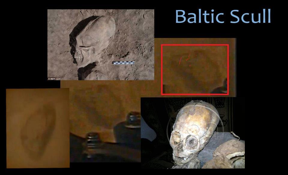 baltic-skull