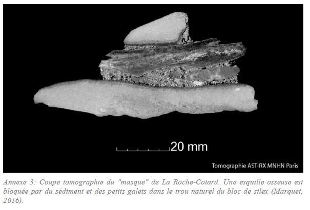 Neanderthal roche cotard10